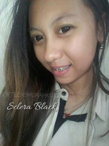 review sclera (2)